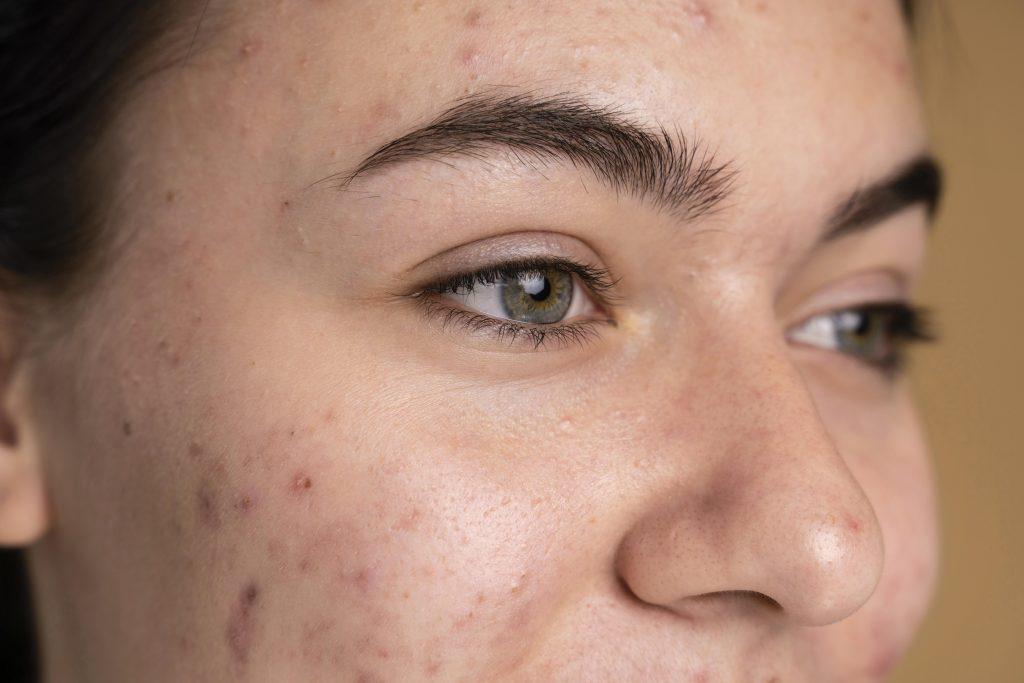 Pele acneica e oleosa: Como cuidar + dicas de Produtos